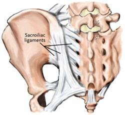 Sacroiliitis