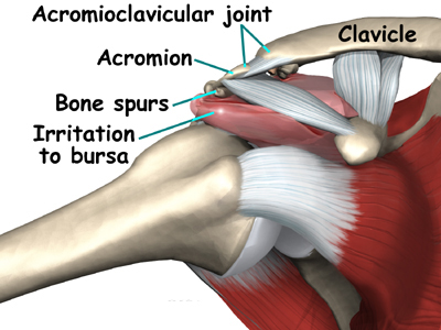 shoulder_impingement_PS